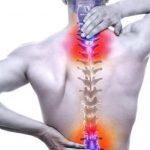 آرتروز ستون فقرات ، علائم و درمان