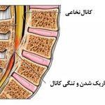 تنگی کانال نخاعی ، علائم و درمان آن