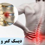 دیسک کمر چیست و علائم و درمان آن را بشناسید