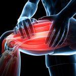 درد لگن و باسن و ران و درمان آن