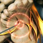 درمان با رادیوفرکوئنسی